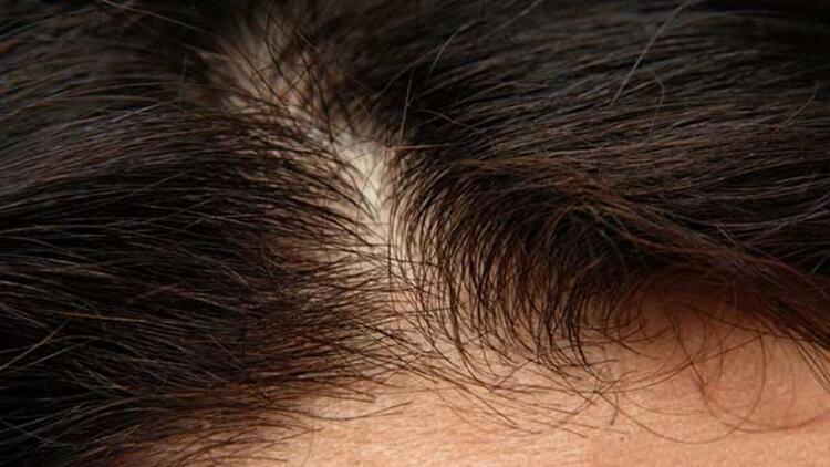 Saç dökülmesi Covid-19 enfeksiyonunun habercisi değildir